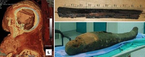 Egyptská mumie s nástrojem na vyjímání mozku
